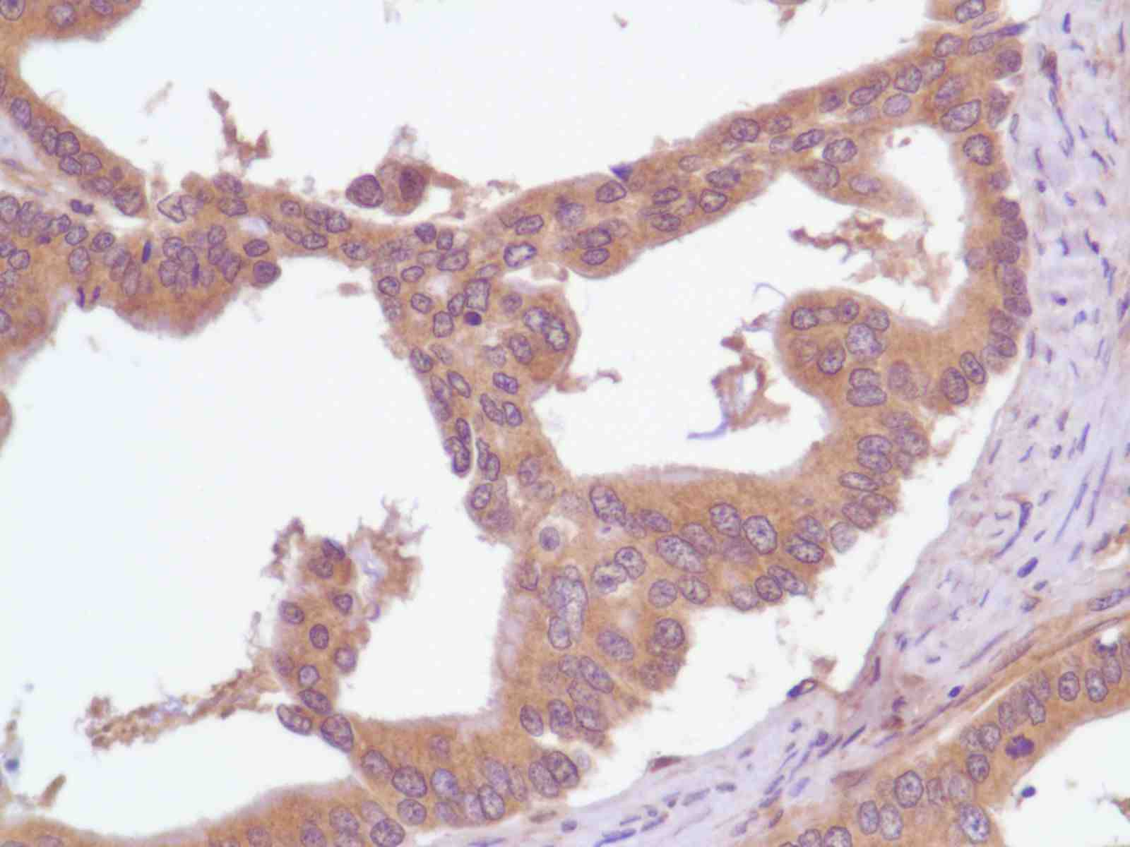 Human Stomach Adenocarcinoma stained with anti-PI3K p85 antibody
