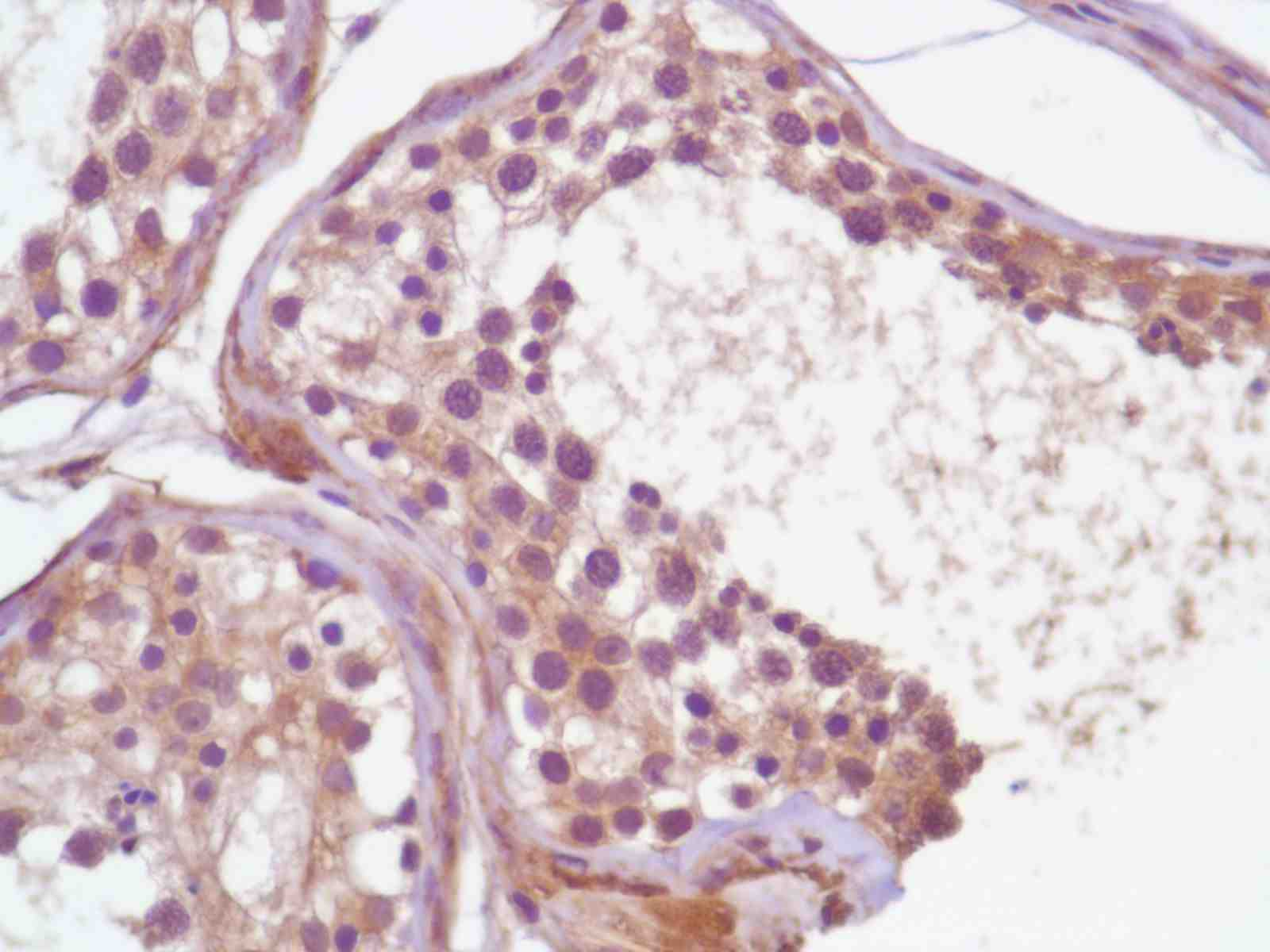 Human Testis stained with anti-PI3K p85 antibody