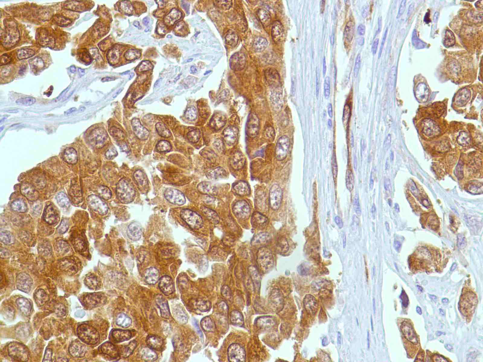 Human Breast Ductal Cell Carcinoma stained with anti-Stathmin antibody