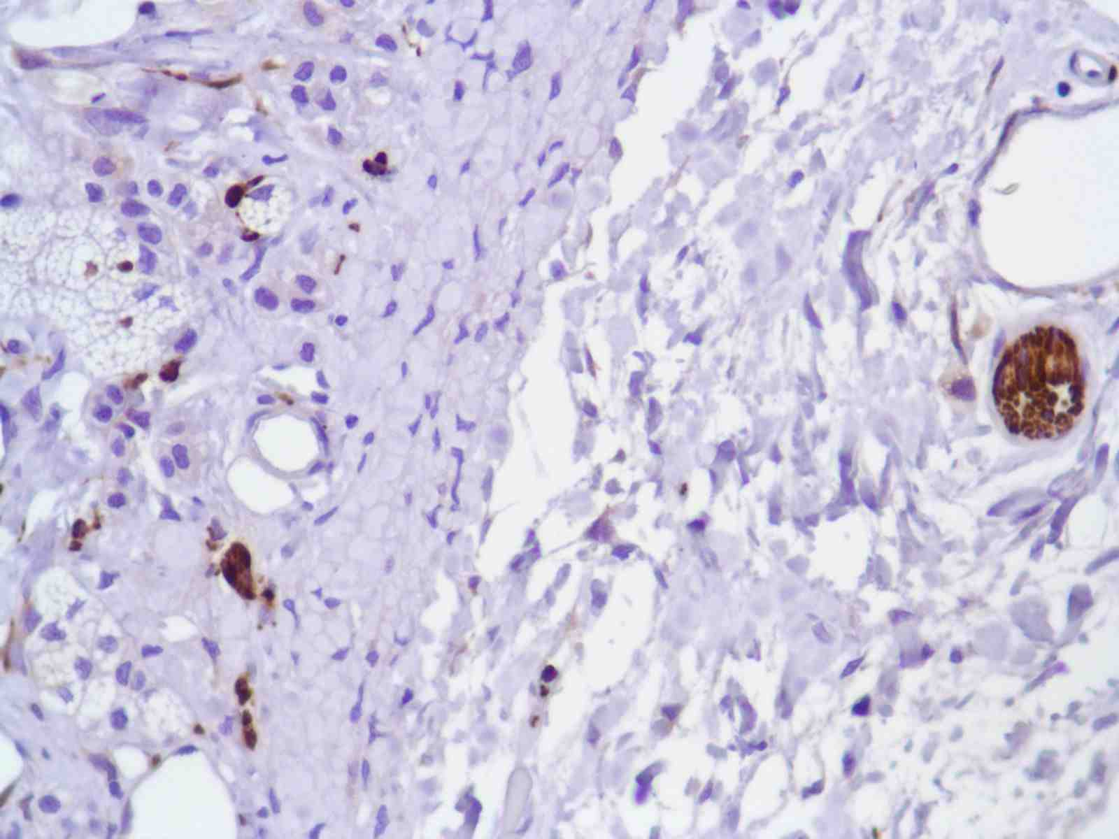 Human Bladder stained with anti-Tau antibody