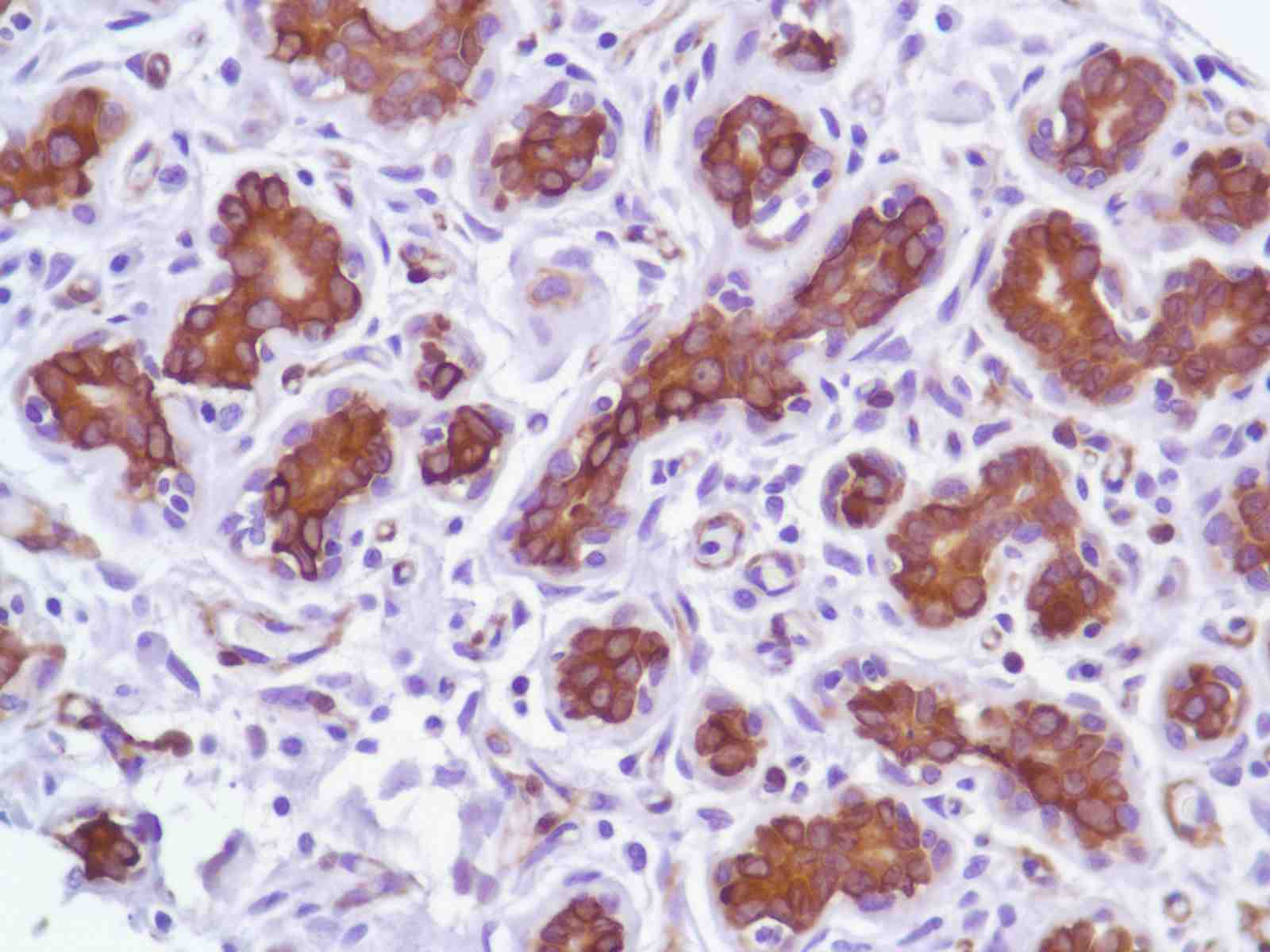 Human Breast stained with anti-Tau antibody
