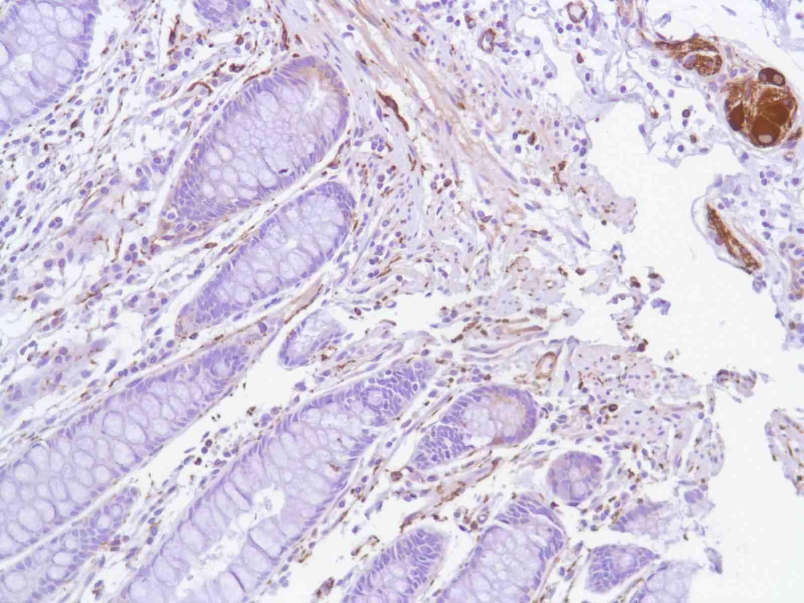 Human Colon stained with anti-Tau antibody
