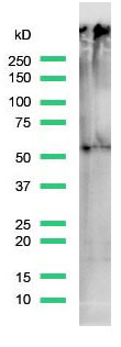 Western Blot analysis of Jurkat cell lysate with TdT antibody