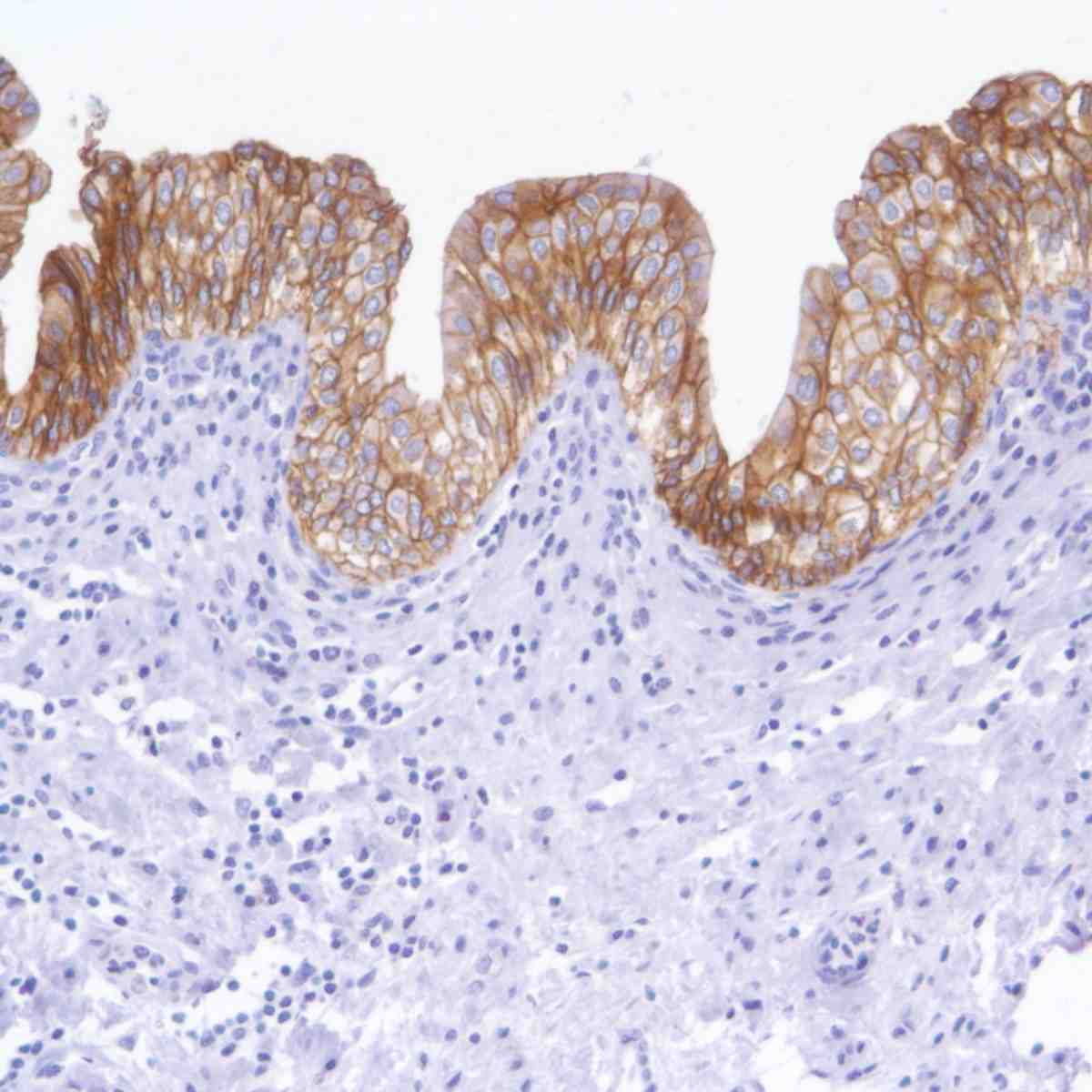Human Bladder stained with anti-TROP-2 antibody