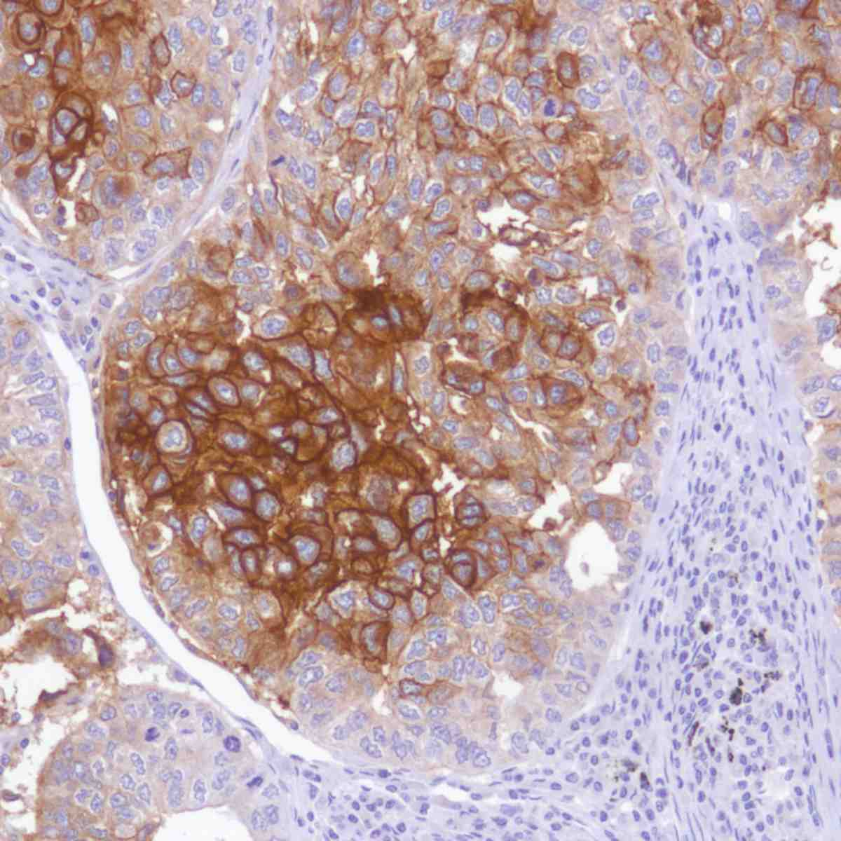 Human Lung squamous cell carcinoma stained with anti-TROP-2 antibody