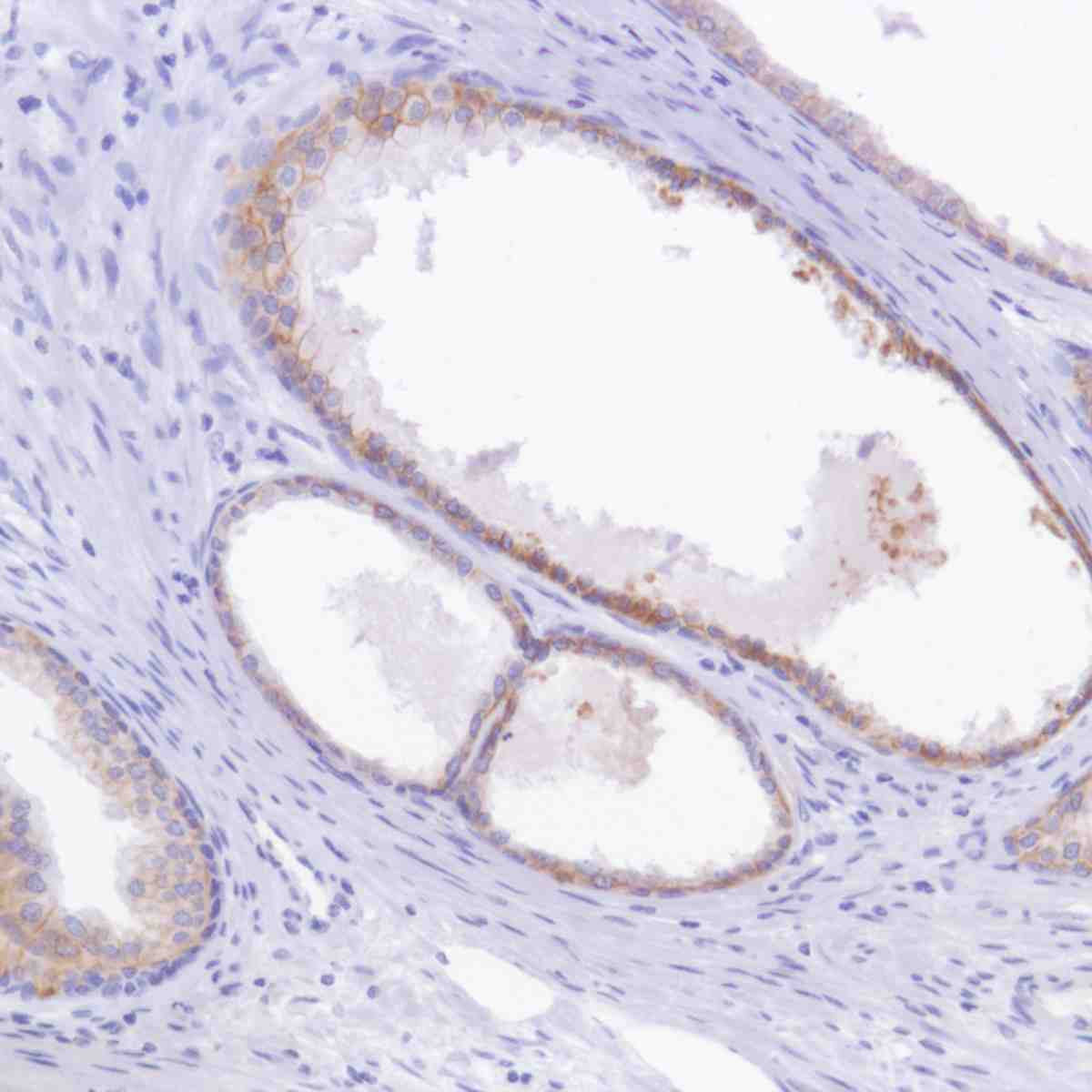 Human Prostate stained with anti-TROP-2 antibody