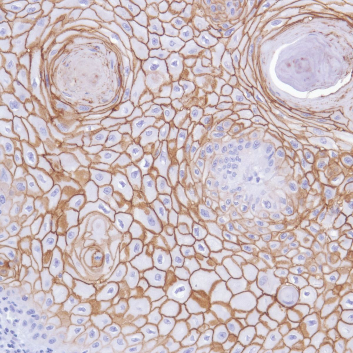 Human Skin squamous cell carcinoma stained with anti-TROP-2 antibody