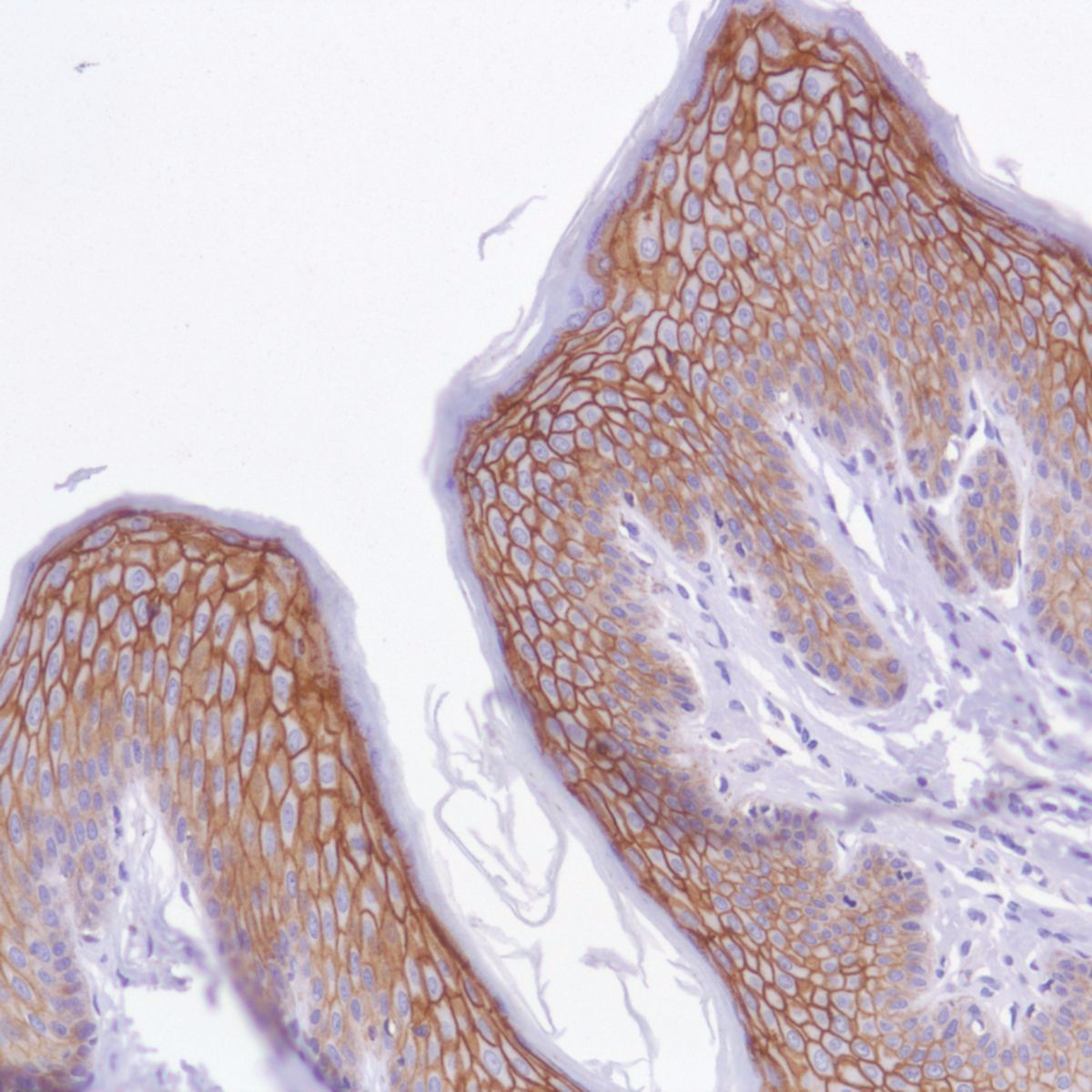 Human Skin stained with anti-TROP-2 antibody