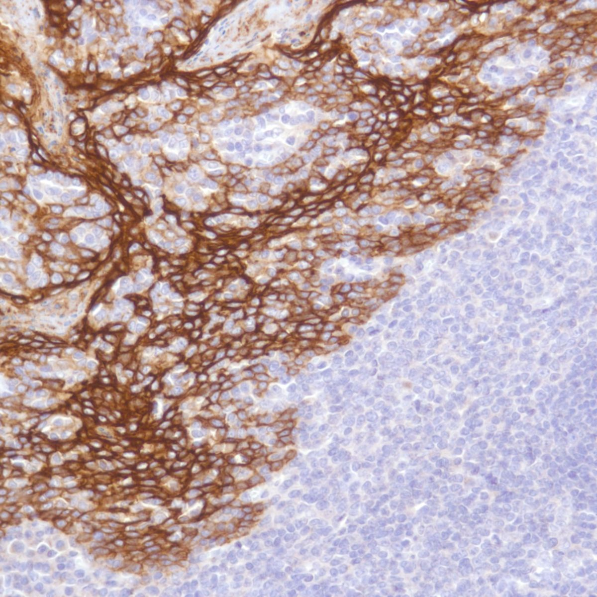 Human Tonsil stained with anti-TROP-2 (SP294) antibody