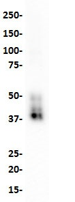 Western blot analysis of SKBR3 cell lysate with anti-TROP-2 (SP294) antibody