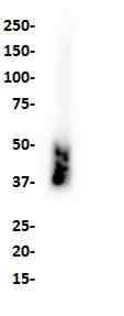 Western blot analysis of SKBR3 cell lysate with anti-TROP-2 (SP295) antibody