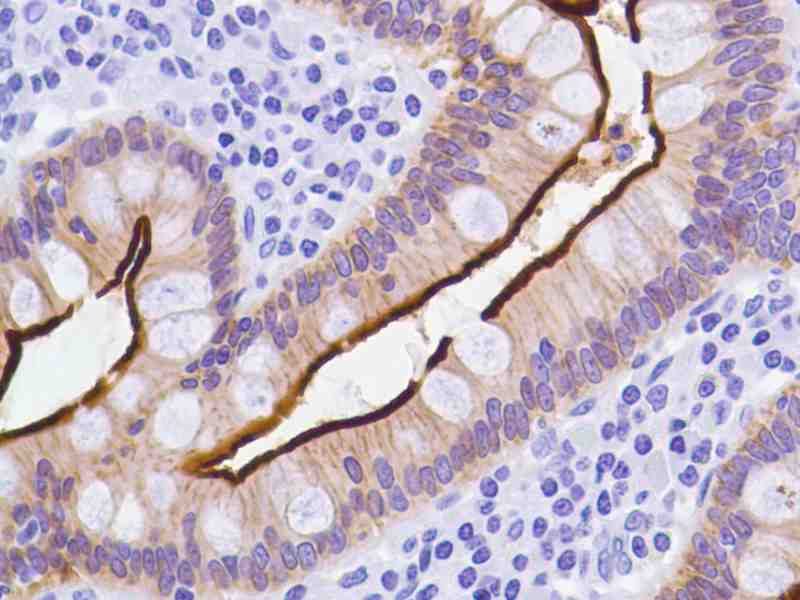 Human Colon stained with anti-villin antibody