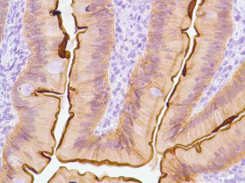Human Small Intestine stained with anti-Villin antibody