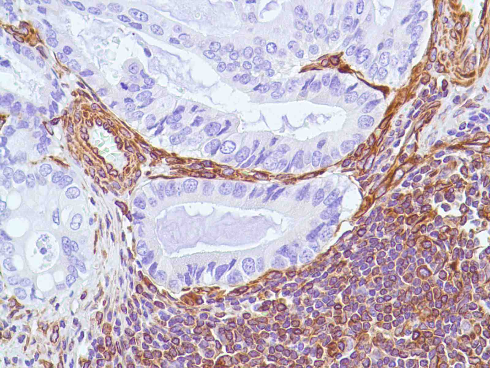 Human Stomach Adenocarcinoma stained with anti-Vimentin antibody