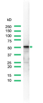 Western Blot analysis of rabbit anti-Vimentin (SP20) antibody