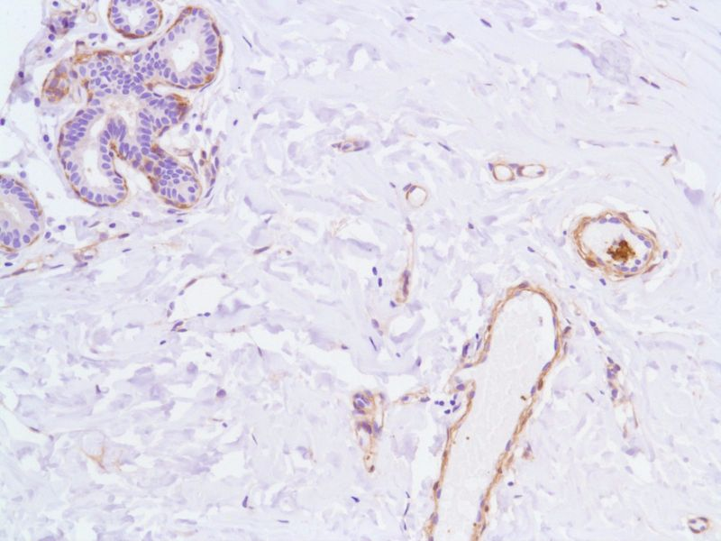 Human Breast stained with anti-Vinculin antibody