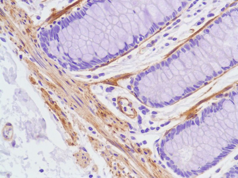 Human Colon stained with anti-Vinculin antibody