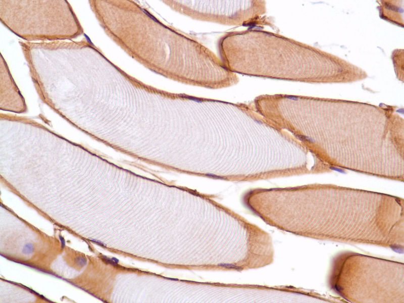 Human Skeletal Muscle stained with anti-Vinculin antibody