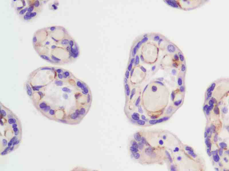 Human Placenta stained with anti-FLK-1 (mouse) antibody