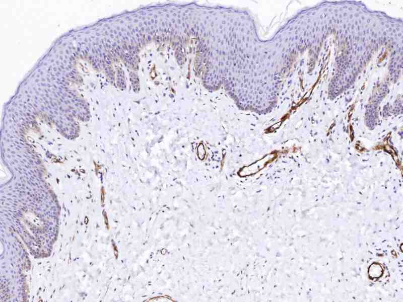 Human Skin stained with anti-FLK-1 (mouse) antibody